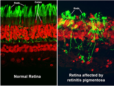 retinitisPigmentosa1