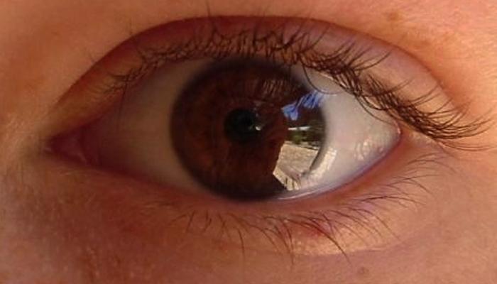 retinitis-pigmentosa-hastaligi