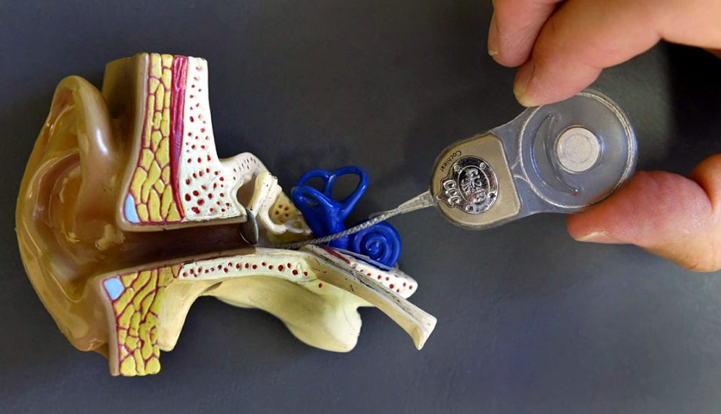 Koklear Implant ameliyatı hakkında görüşlerim